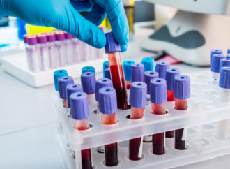 New blood test could detect 20 types of cancer